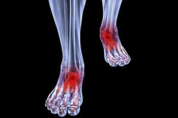 arthritic foot care